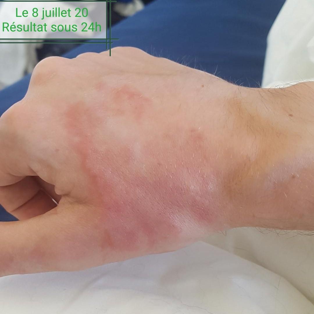 eczema apres